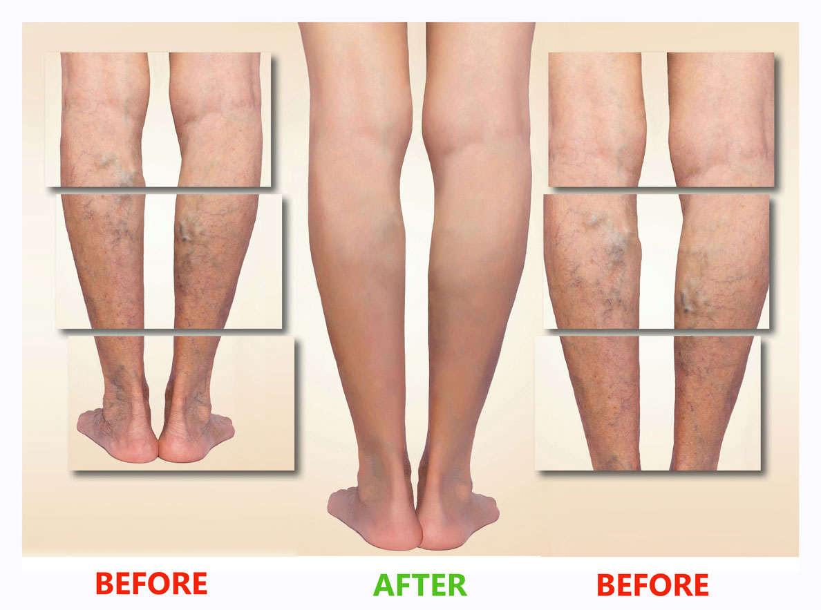 how to get rid of veins on face legs body